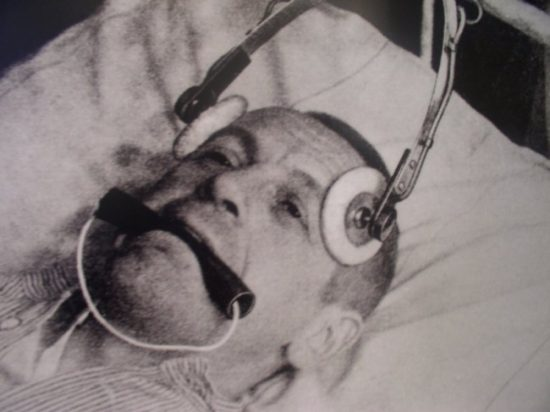 Male patient recieving Electro-convulsive shock therapy.